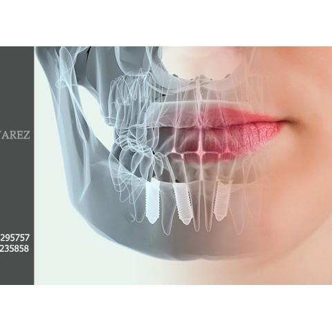 Portada Implantología